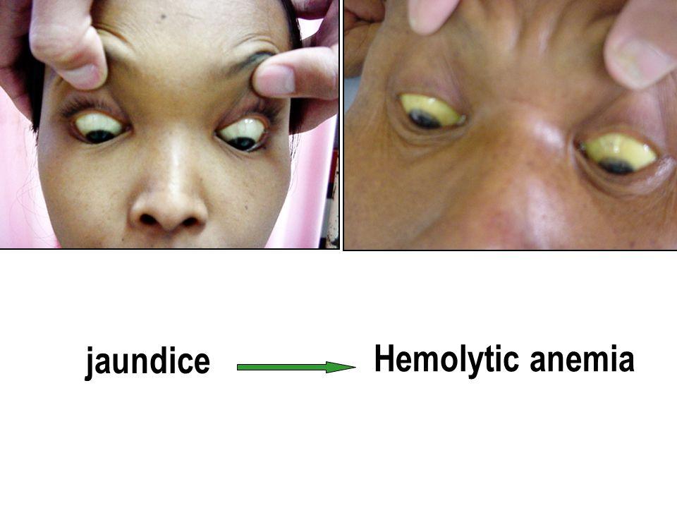 jaundice Hemolytic anemia