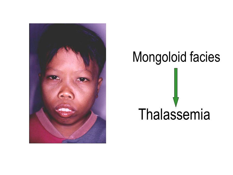 Mongoloid facies Thalassemia