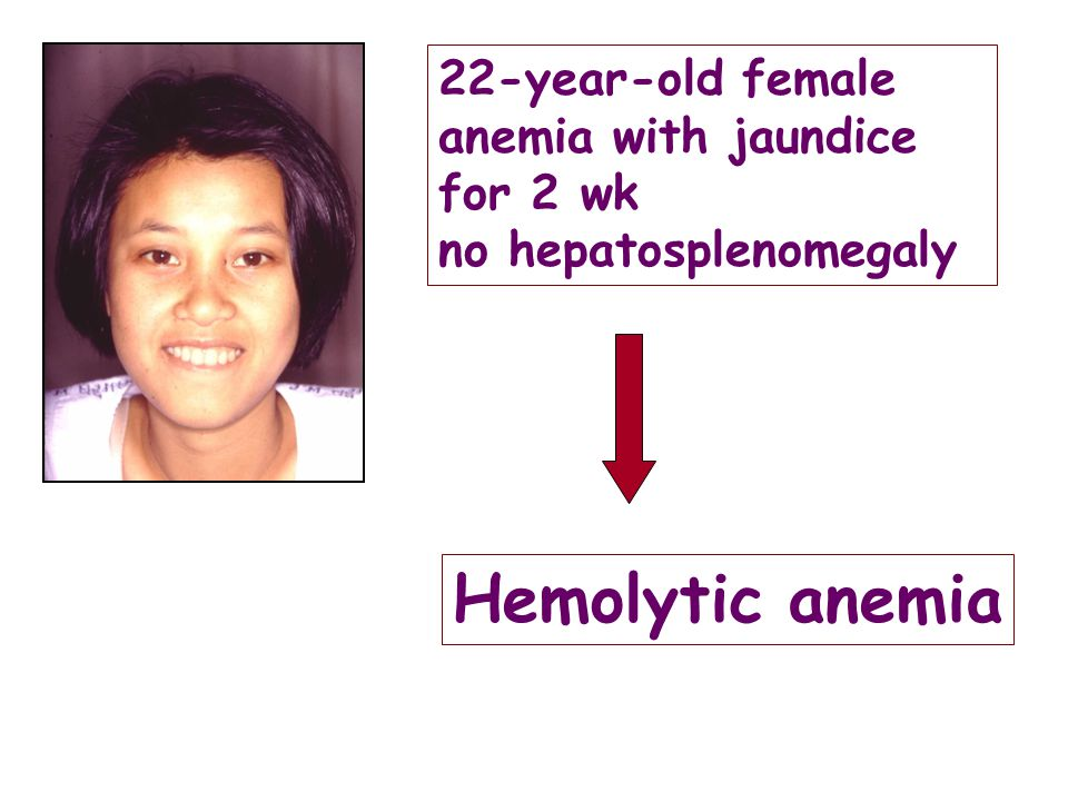Hemolytic anemia 22-year-old female anemia with jaundice for 2 wk