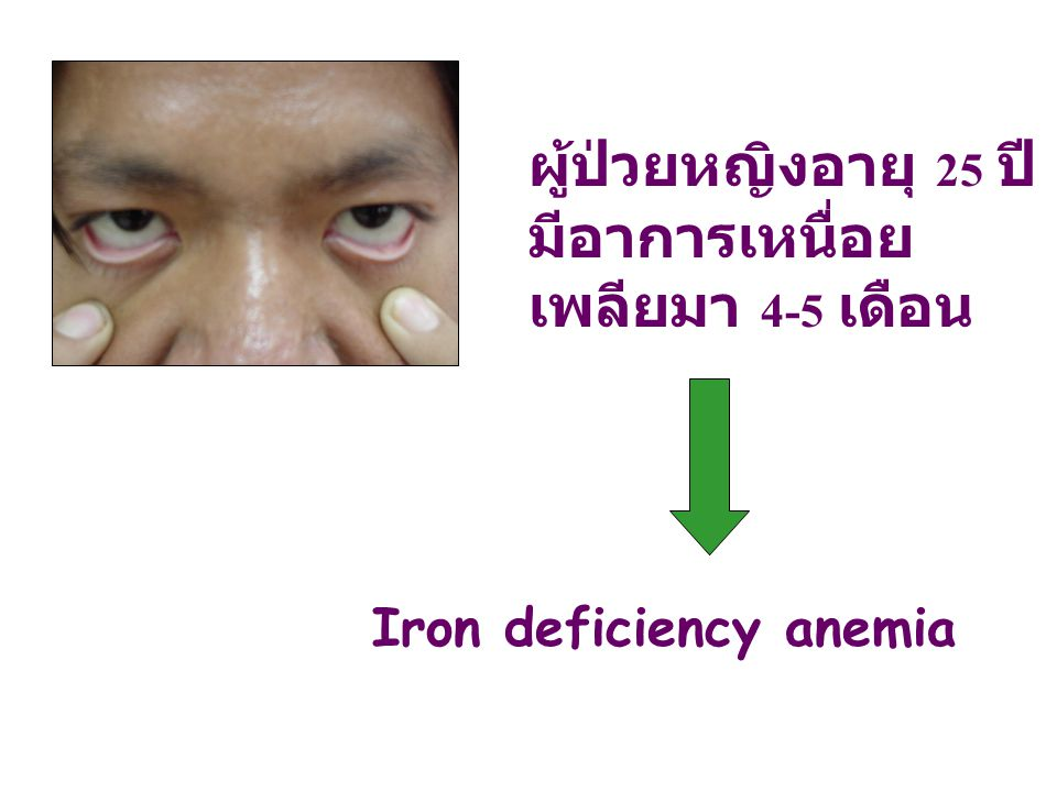 ผู้ป่วยหญิงอายุ 25 ปี มีอาการเหนื่อยเพลียมา 4-5 เดือน