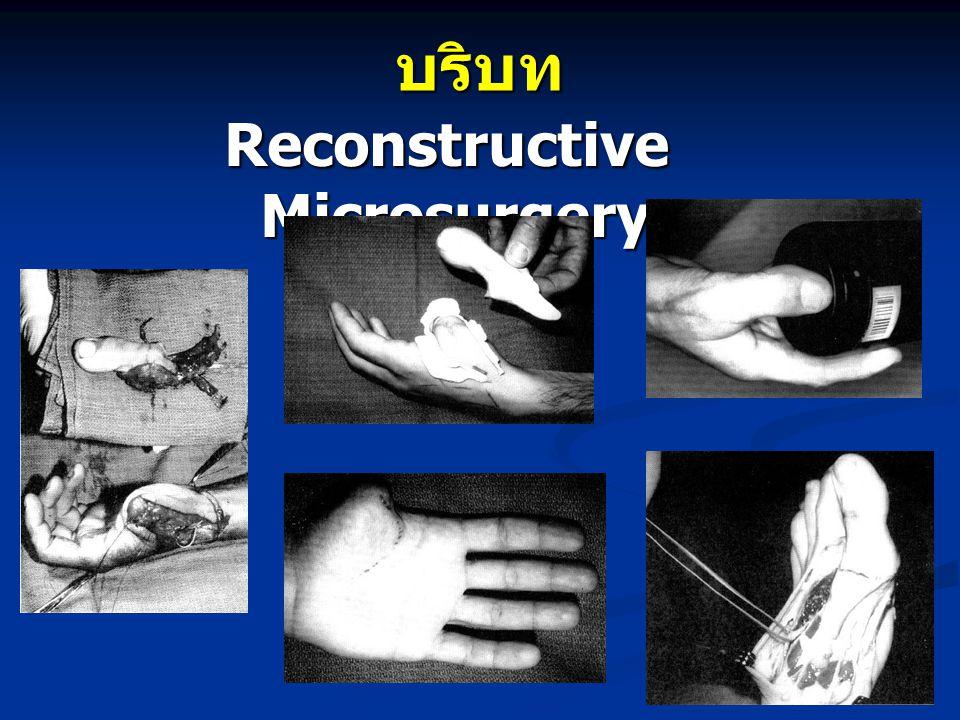 บริบท Reconstructive Microsurgery