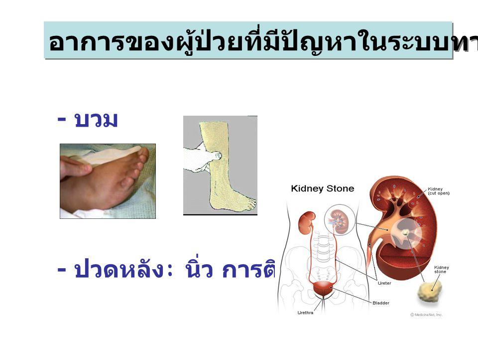 อาการของผู้ป่วยที่มีปัญหาในระบบทางเดินปัสสาวะ