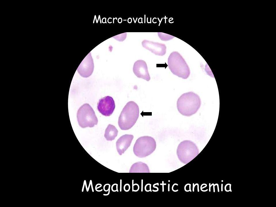Macro-ovalucyte Megaloblastic anemia