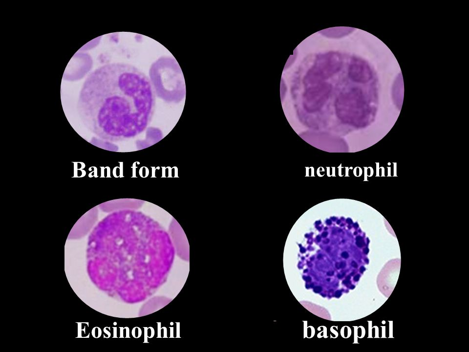 Band form neutrophil Eosinophil basophil