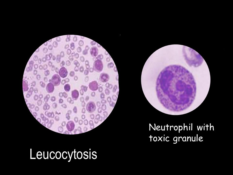Neutrophil with toxic granule Leucocytosis
