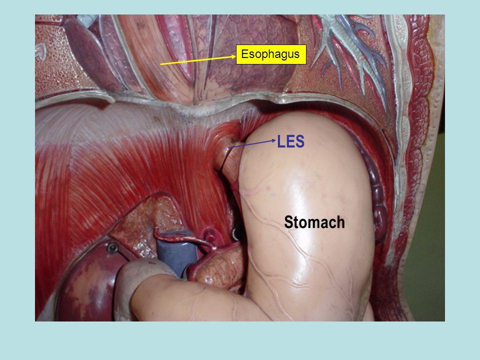 Esophagus LES Stomach