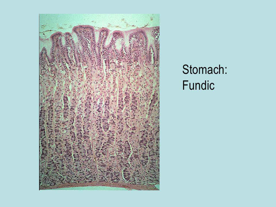 Stomach: Fundic