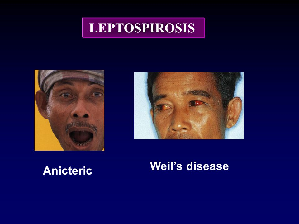 LEPTOSPIROSIS Weil's disease Anicteric