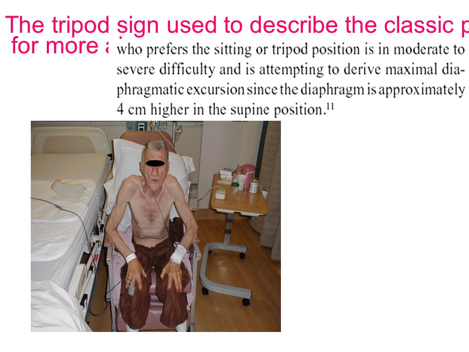 The tripod sign used to describe the classic position of a person desperate