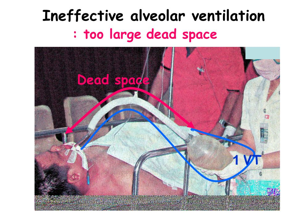 Ineffective alveolar ventilation : too large dead space