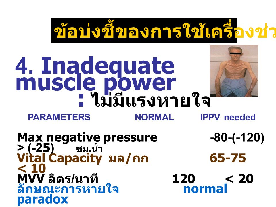 4. Inadequate muscle power : ไม่มีแรงหายใจ