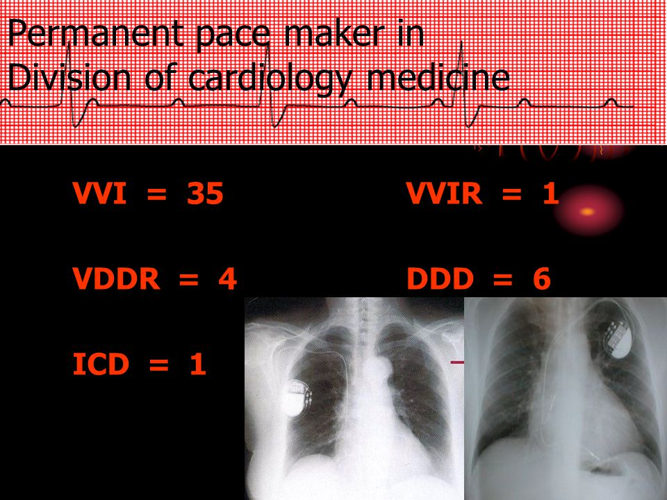Permanent pace maker in Division of cardiology medicine