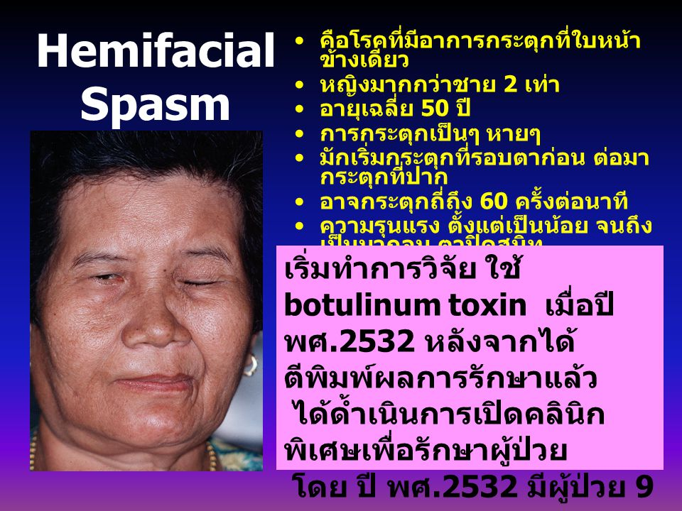 Hemifacial Spasm เริ่มทำการวิจัย ใช้ botulinum toxin เมื่อปี