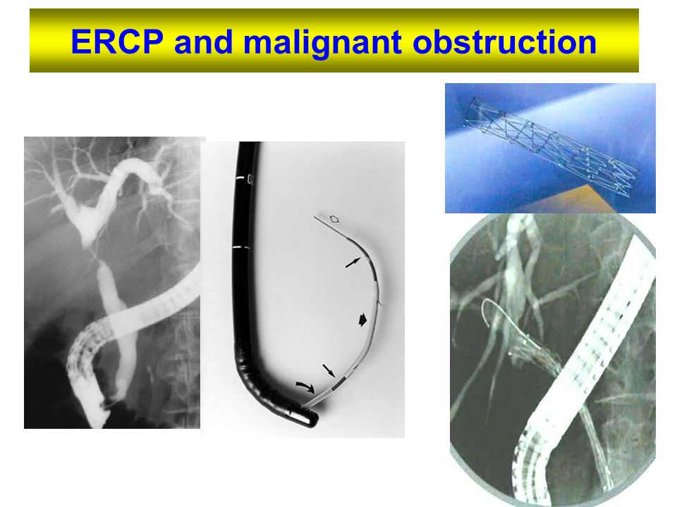 ERCP and malignant obstruction