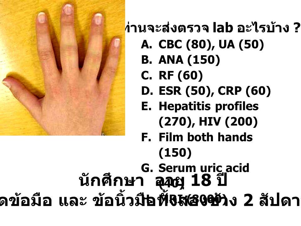 นักศึกษา อายุ 18 ปี ปวดข้อมือ และ ข้อนิ้วมือทั้งสองข้าง 2 สัปดาห์