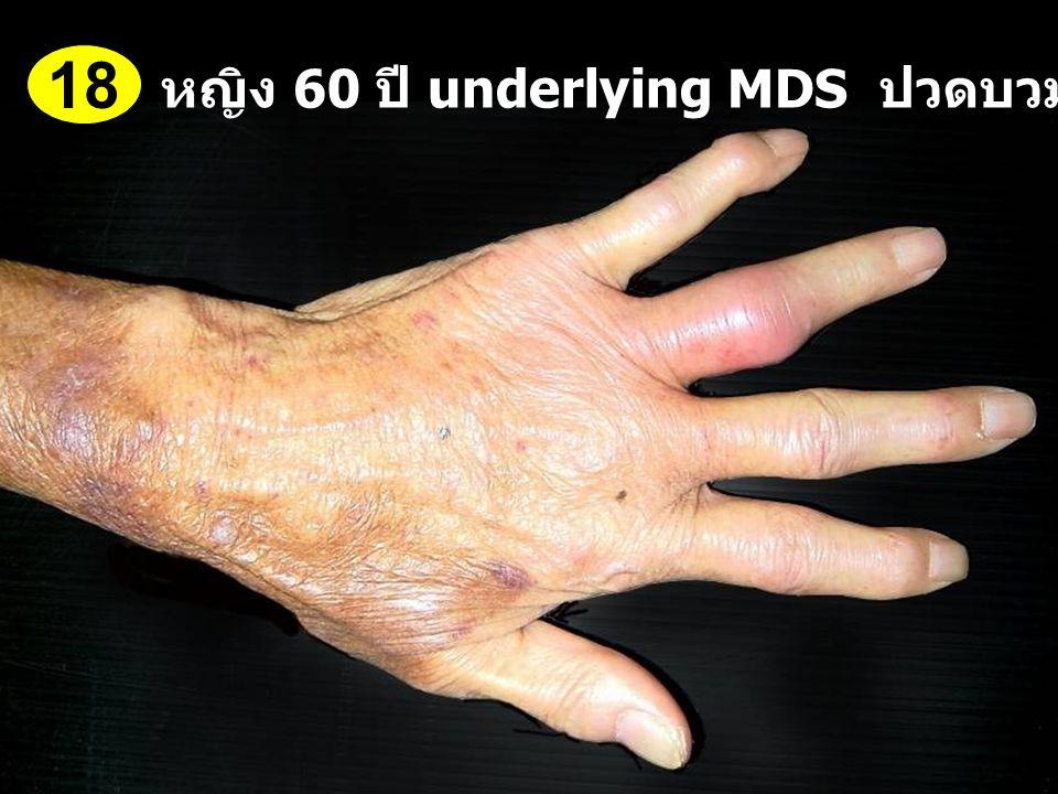18 หญิง 60 ปี underlying MDS ปวดบวมข้อนิ้วมือ 1 สัปดาห์