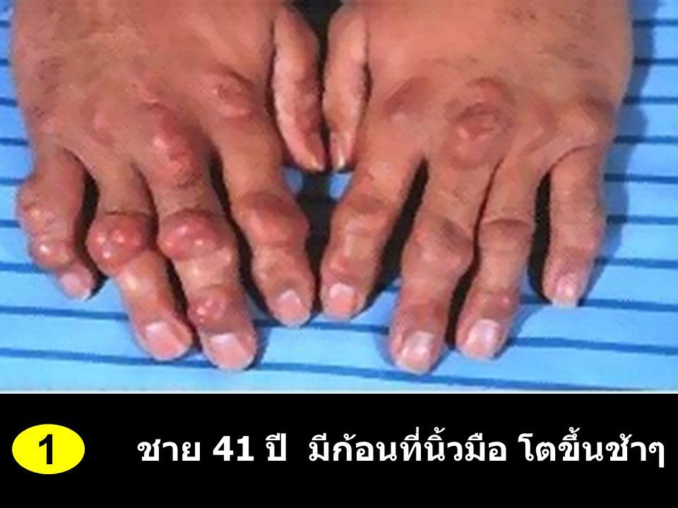1 ชาย 41 ปี มีก้อนที่นิ้วมือ โตขึ้นช้าๆ 5-6 ปี