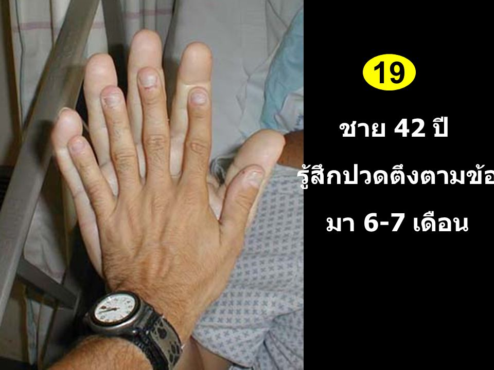 19 ชาย 42 ปี รู้สึกปวดตึงตามข้อ มา 6-7 เดือน