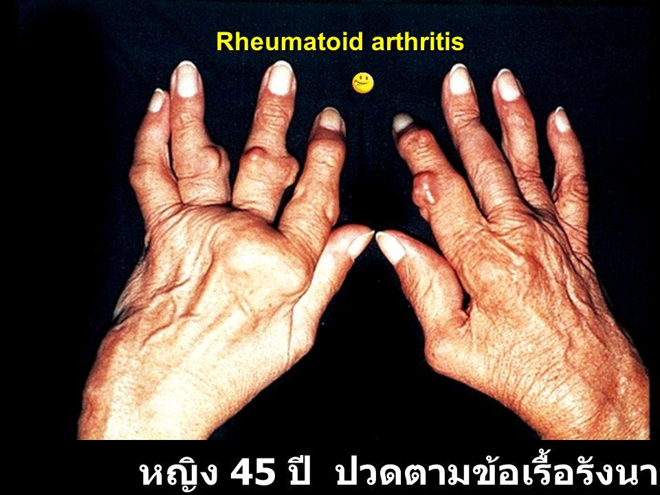 หญิง 45 ปี ปวดตามข้อเรื้อรังนาน 12 ปี