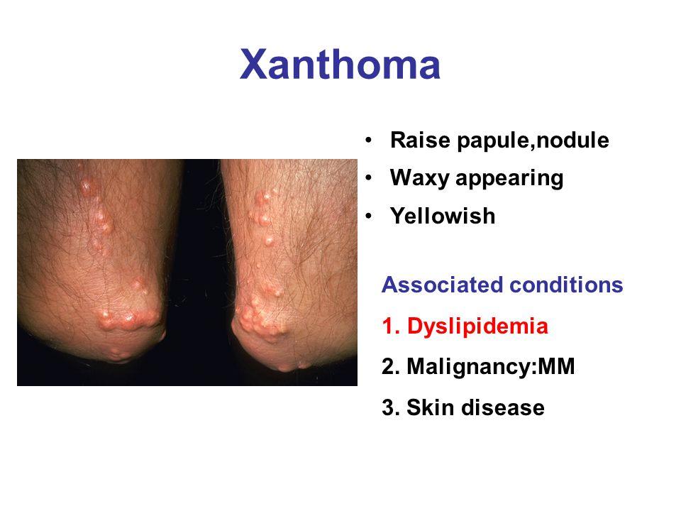 Xanthoma Raise papule,nodule Waxy appearing Yellowish