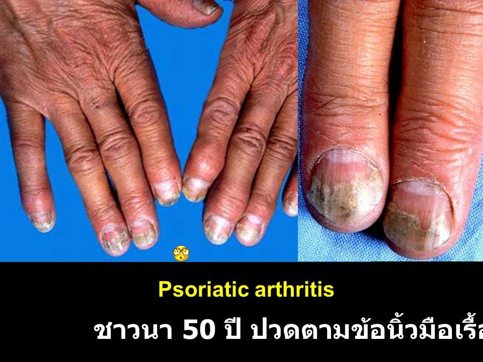 ชาวนา 50 ปี ปวดตามข้อนิ้วมือเรื้อรัง 3 ปี