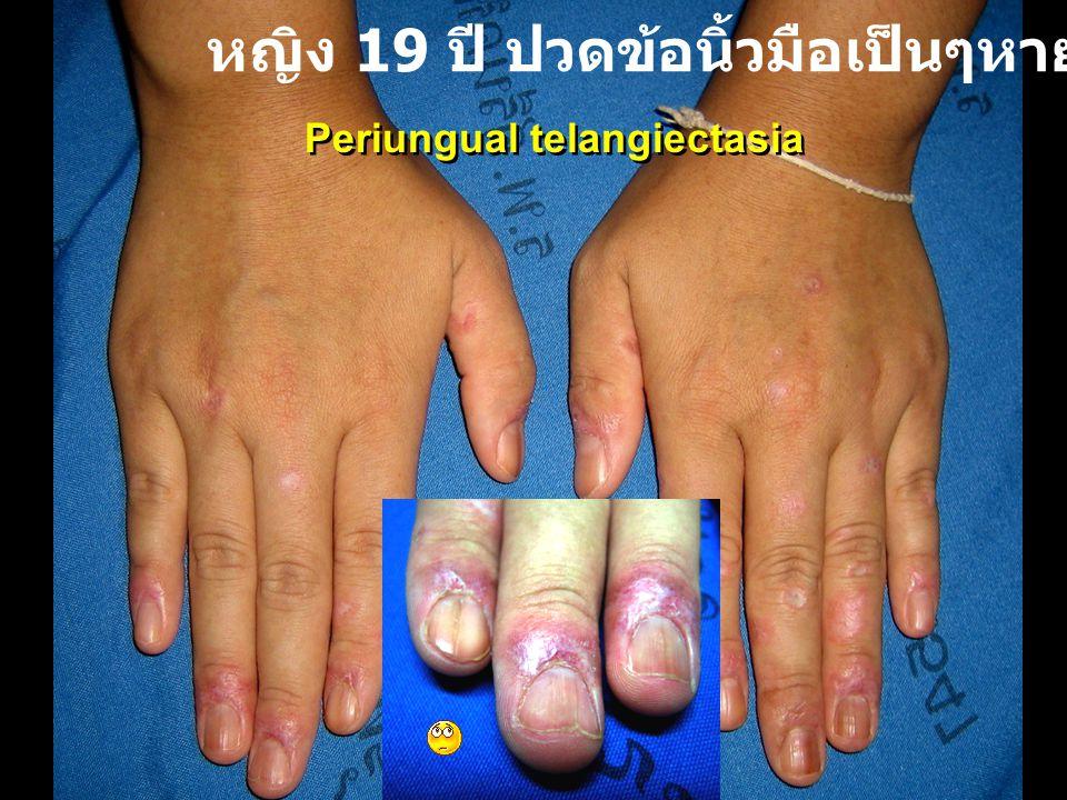 หญิง 19 ปี ปวดข้อนิ้วมือเป็นๆหายๆ 1 ปี
