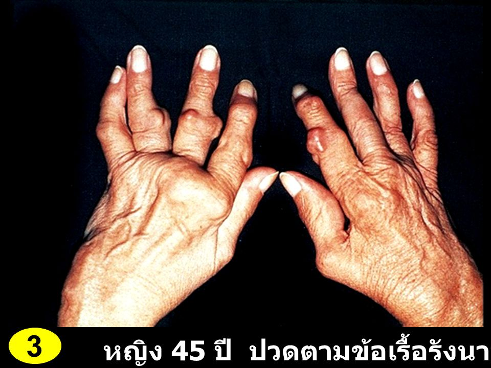 3 หญิง 45 ปี ปวดตามข้อเรื้อรังนาน 12 ปี