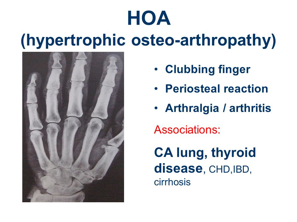 HOA (hypertrophic osteo-arthropathy)