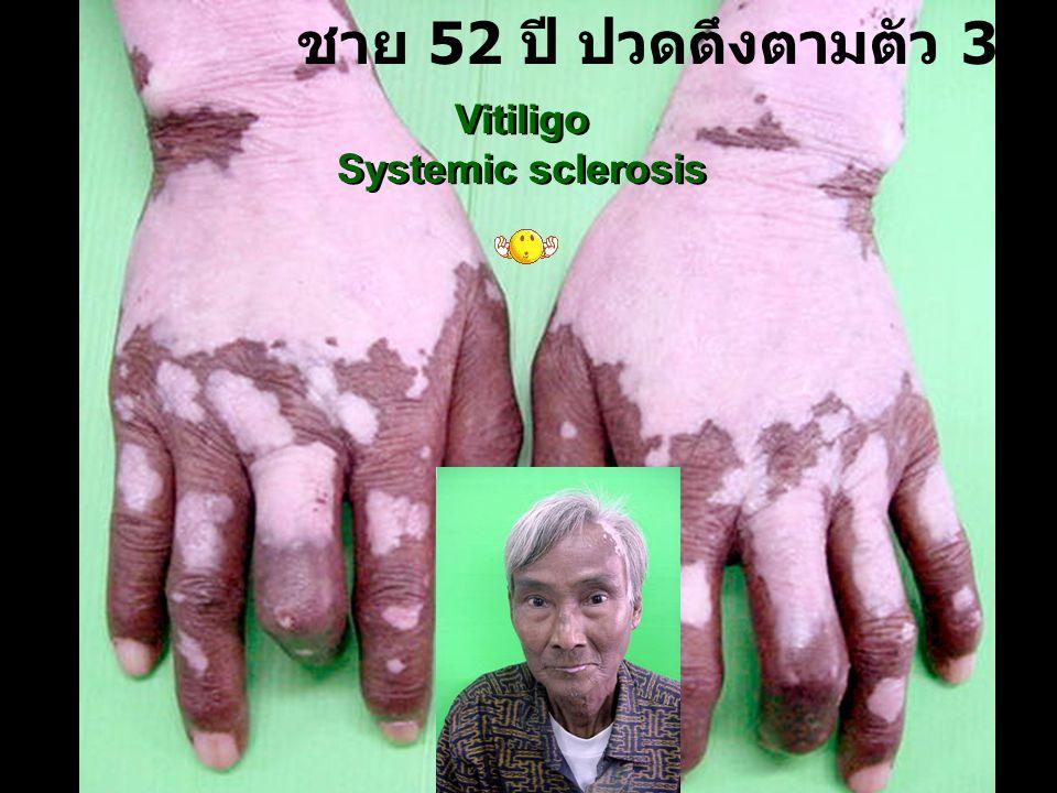 ชาย 52 ปี ปวดตึงตามตัว 3 ปี Vitiligo Systemic sclerosis