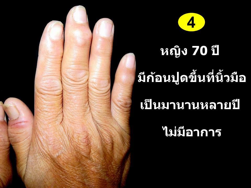 มีก้อนปูดขึ้นที่นิ้วมือ