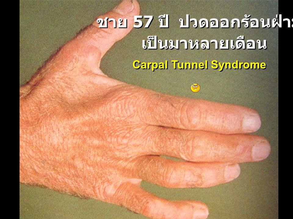 ชาย 57 ปี ปวดออกร้อนฝ่ามือ