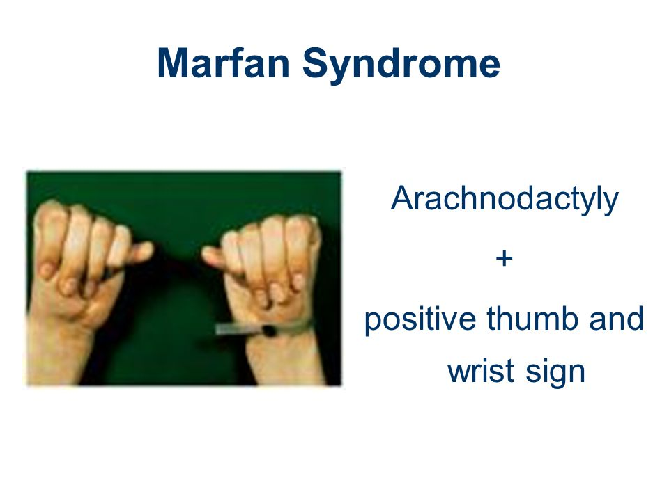 positive thumb and wrist sign