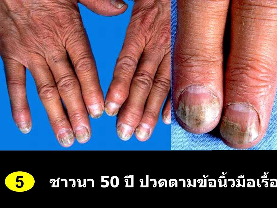 5 ชาวนา 50 ปี ปวดตามข้อนิ้วมือเรื้อรัง 3 ปี