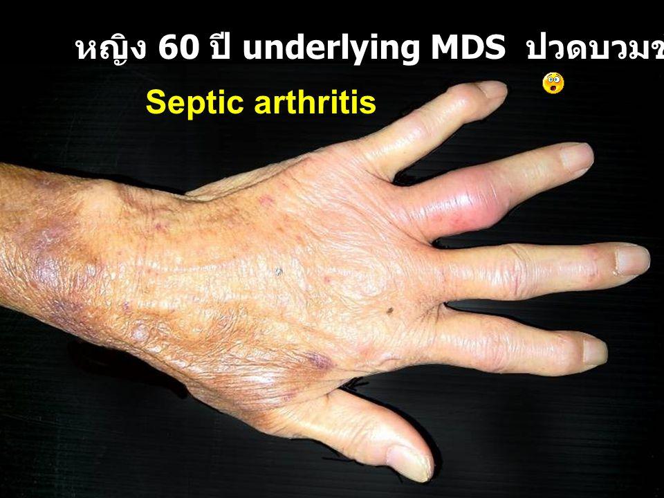 หญิง 60 ปี underlying MDS ปวดบวมข้อนิ้วมือ 1 สัปดาห์
