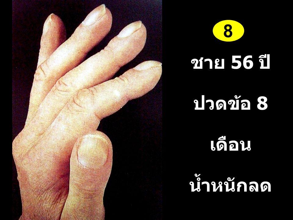 8 ชาย 56 ปี ปวดข้อ 8 เดือน น้ำหนักลด