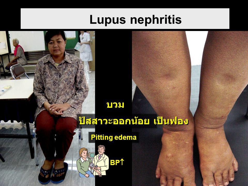 Lupus nephritis บวม ปัสสาวะออกน้อย เป็นฟอง Pitting edema BP