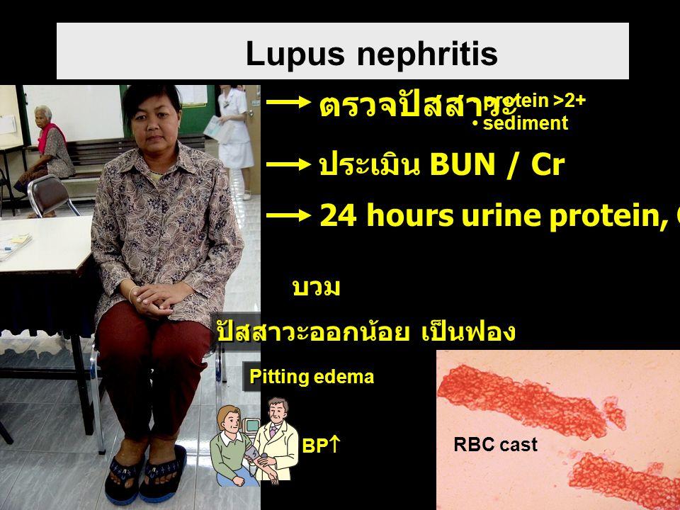 Lupus nephritis ตรวจปัสสาวะ ประเมิน BUN / Cr