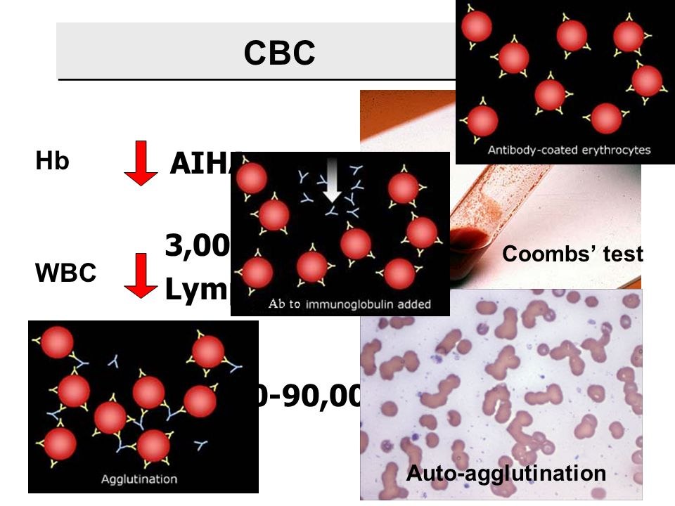 CBC AIHA 3,000-4,000 Lymph < 1,500 80,000-90,000 Hb WBC Platelet
