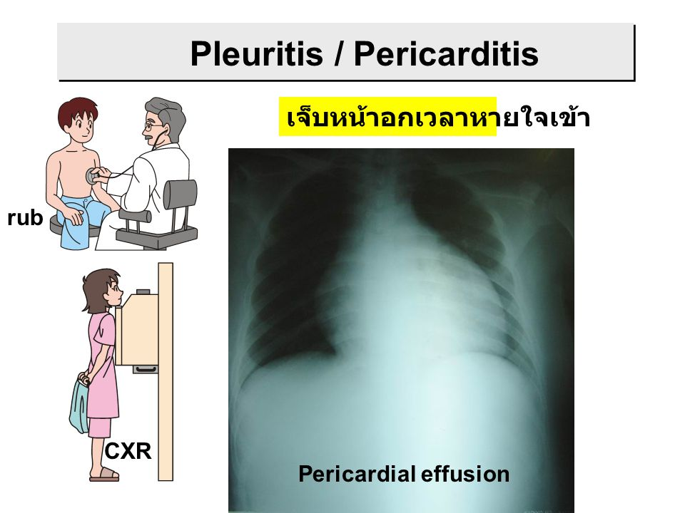 Bilateral pleural effusion Lower lobe infiltration