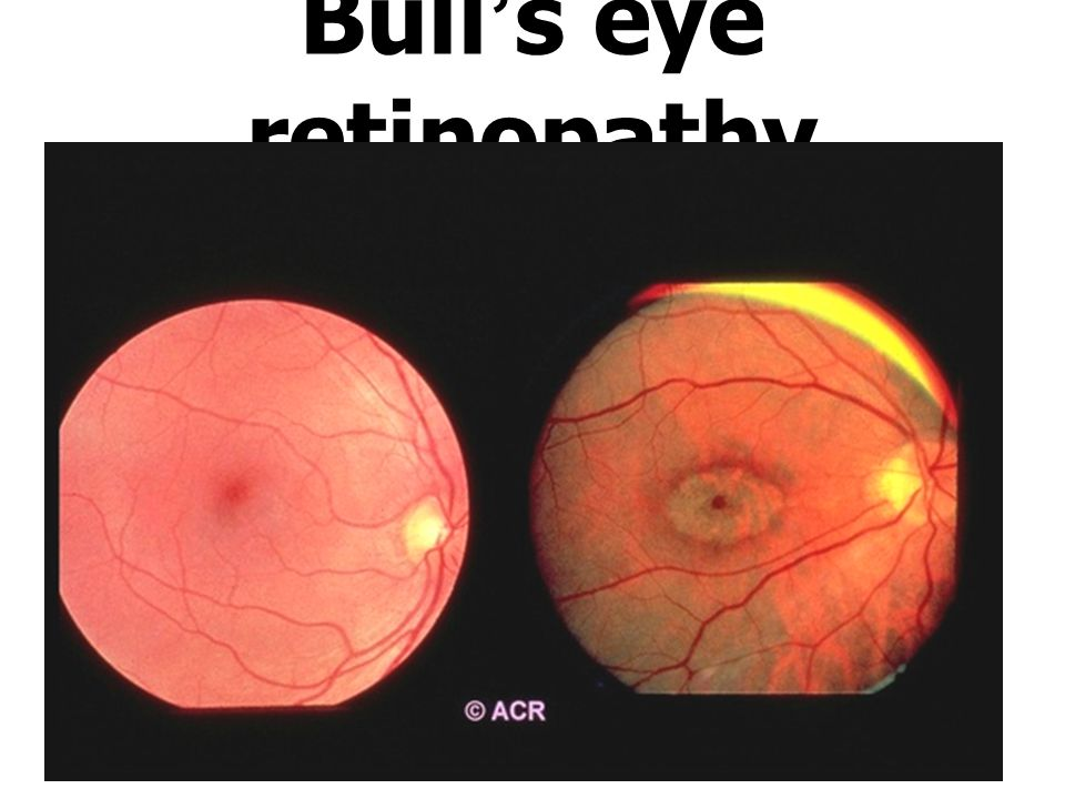 Bull's eye retinopathy