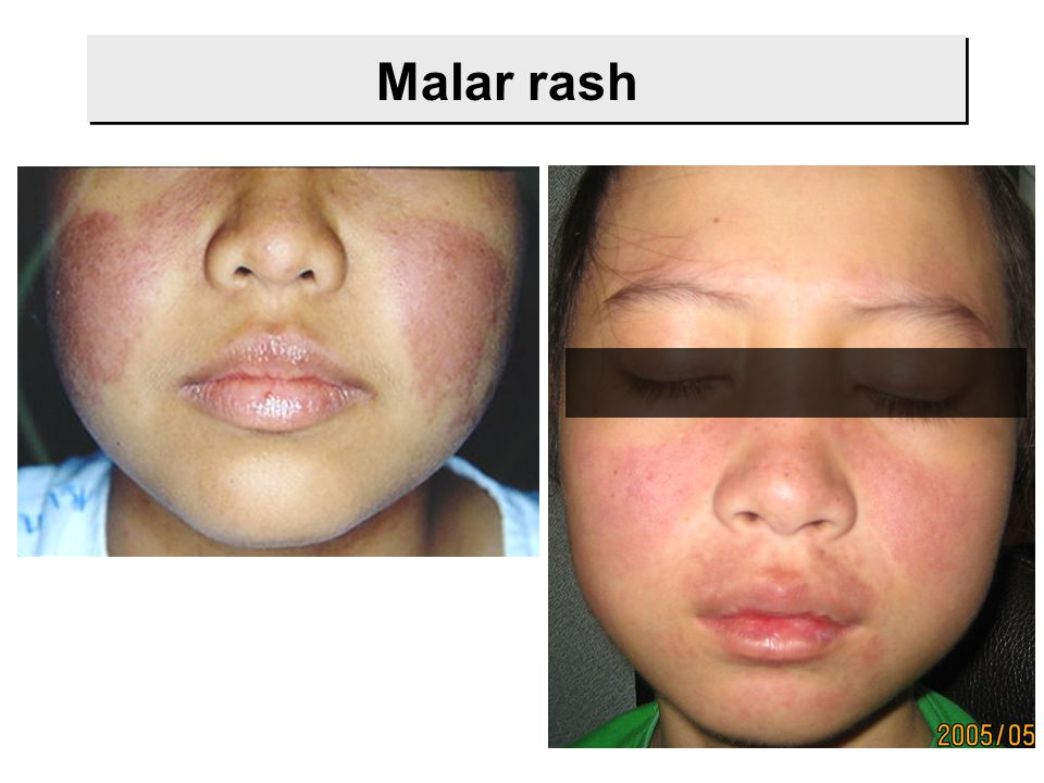 Malar rash
