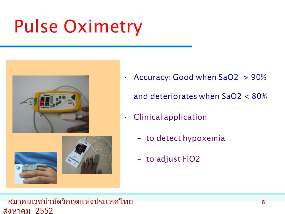 Pulse Oximetry Accuracy: Good when SaO2 > 90% and deteriorates when SaO2 < 80% Clinical application.