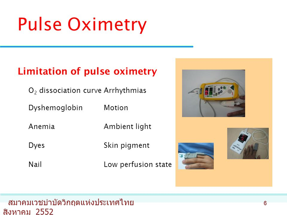 Pulse Oximetry Limitation of pulse oximetry