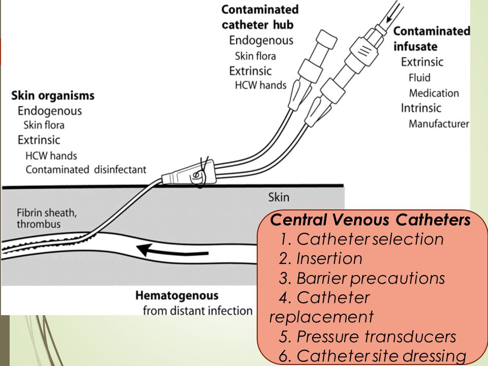 Central Venous Catheters 1. Catheter selection 2. Insertion