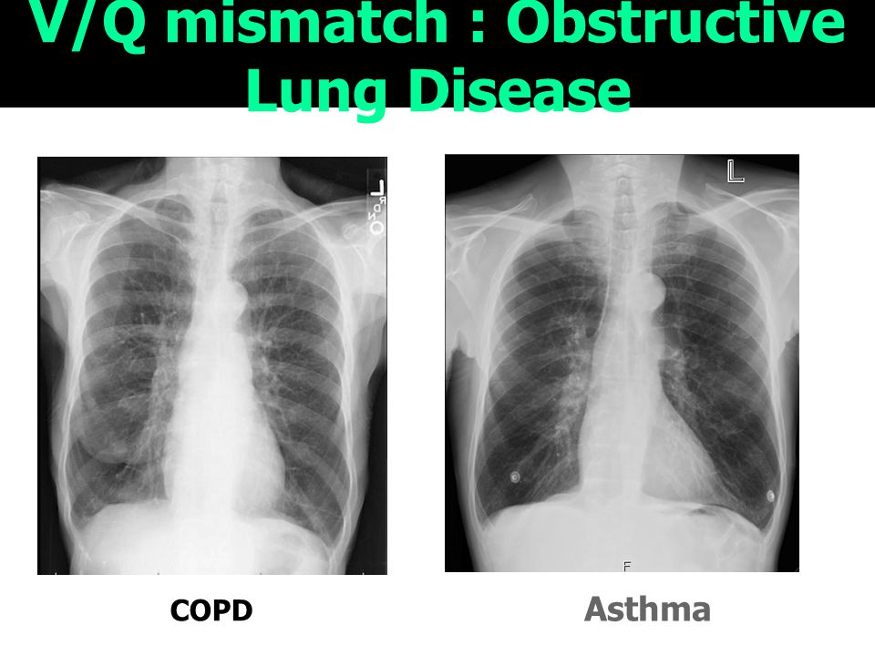 V/Q mismatch : Obstructive Lung Disease