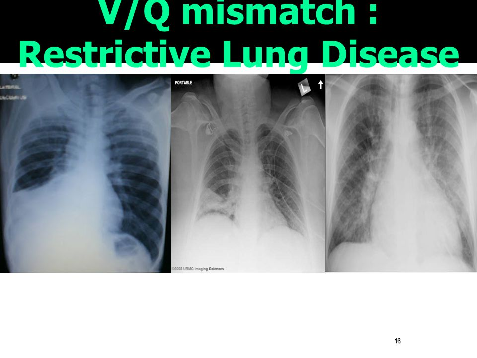 V/Q mismatch : Restrictive Lung Disease