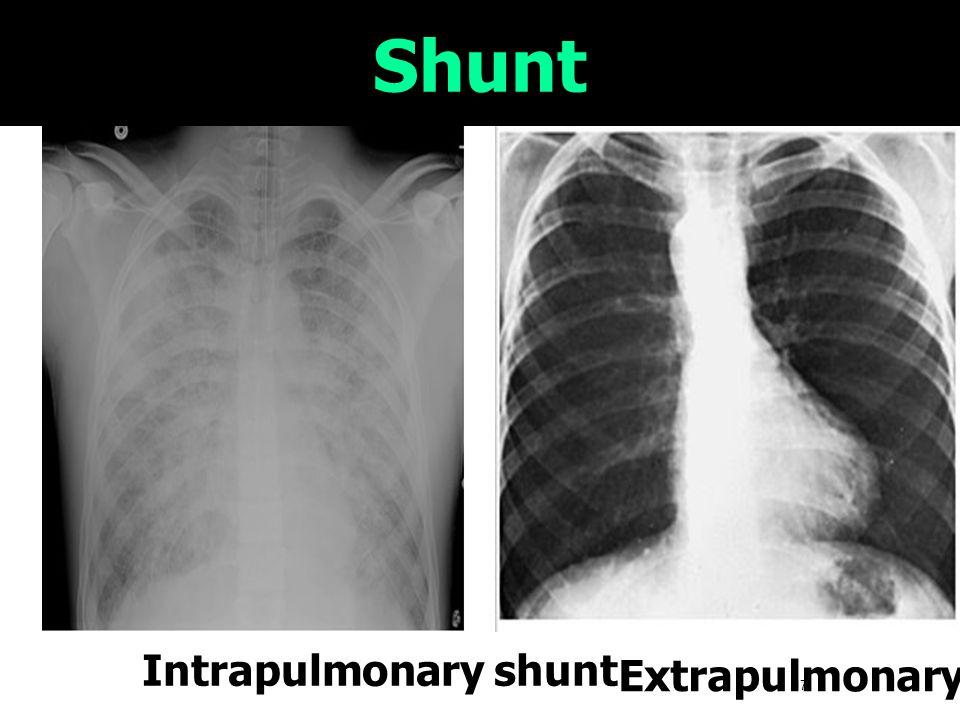 Shunt Intrapulmonary shunt Extrapulmonary shunt