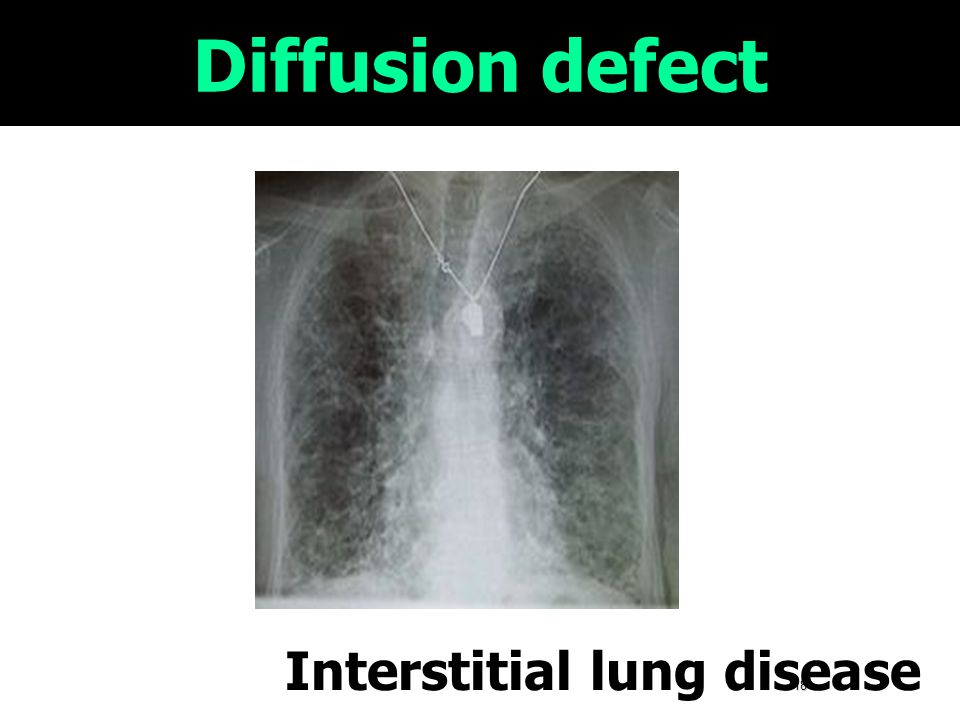 Diffusion defect Interstitial lung disease