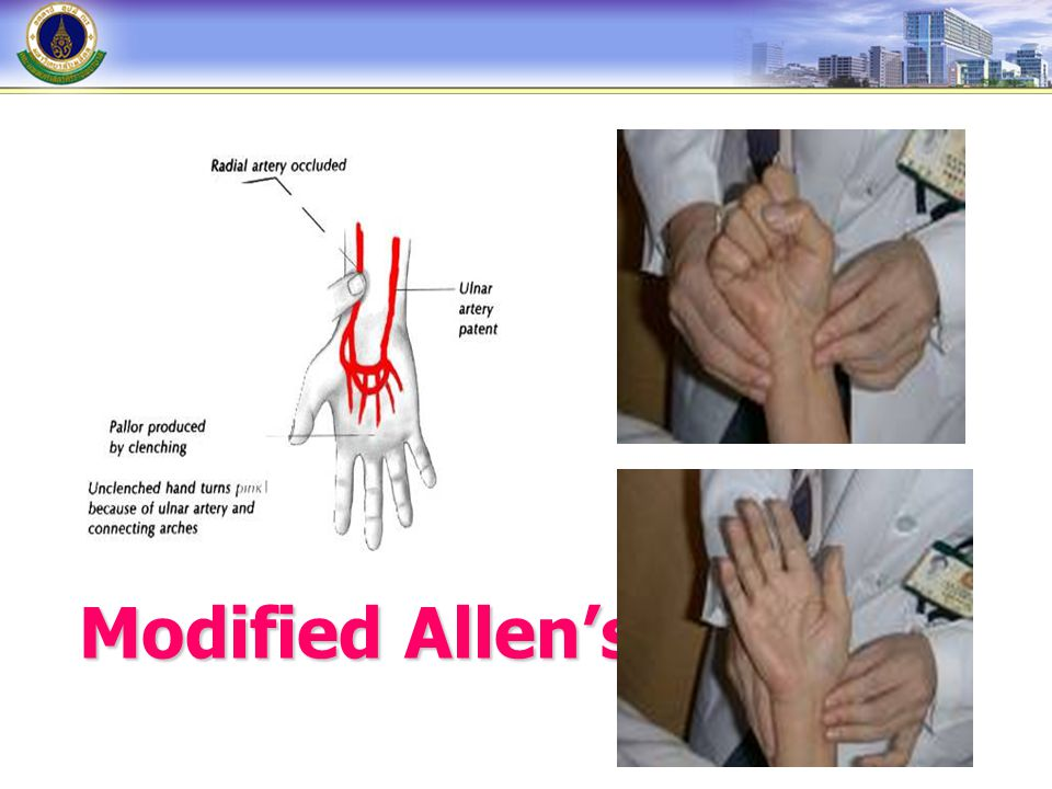 Modified Allen's test