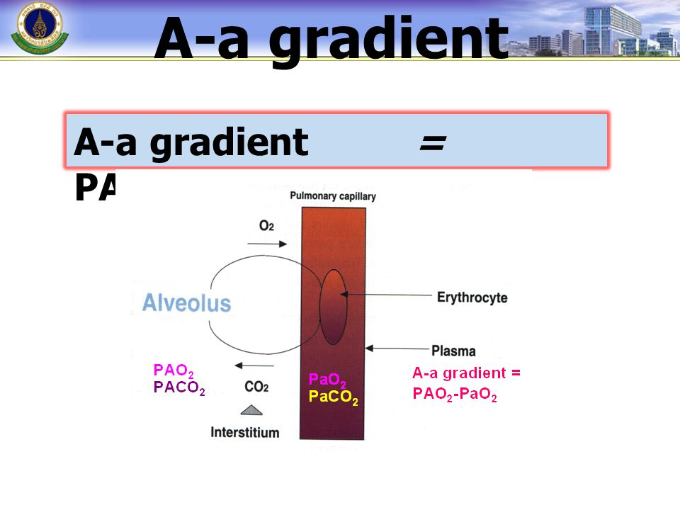 A-a gradient A-a gradient = PAO2 - PaO2
